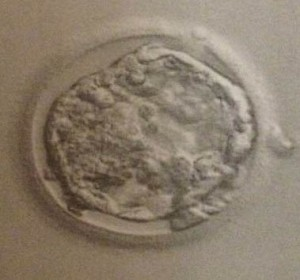 Dutch Embryo